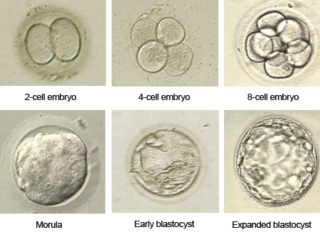 The development of the zygote up the blastocyst stage